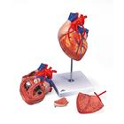 G06_01_140_140_Heart-with-Bypass-2-times-life-size-4-part
