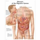 VR1431UU_01_140_140_Diseases-of-the-Digestive-System-Chart