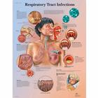 VR1253UU_01_140_140_Respiratory-Tract-Infections-Chart